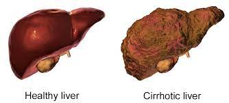 Physical Symptoms Of Liver Disease